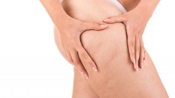Notre avis sur l'efficacité du legging anti-cellulite.