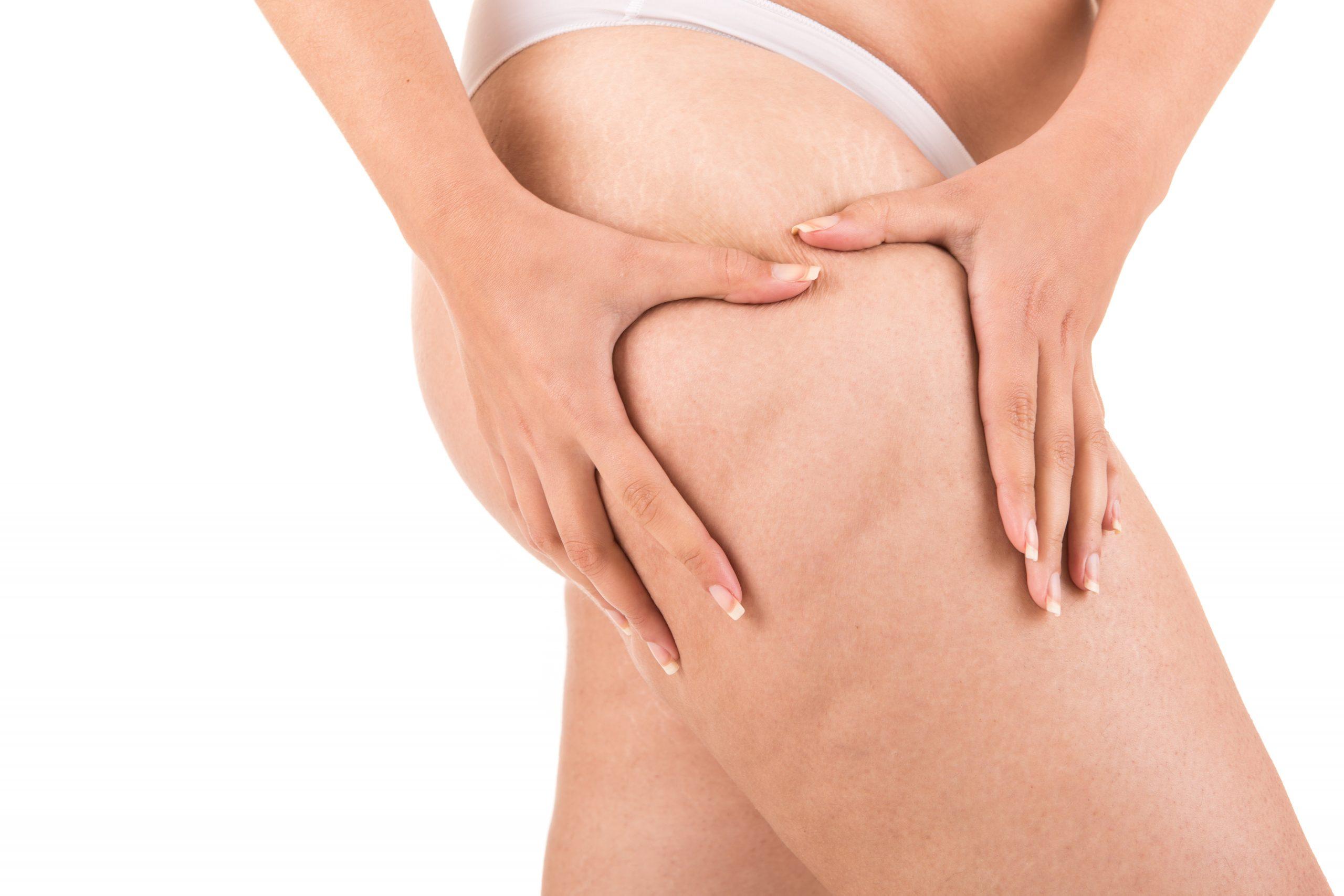 Les leggings anti-cellulite sont-ils vraiment efficaces?